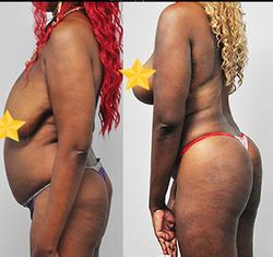 Liposuction + Breast lift