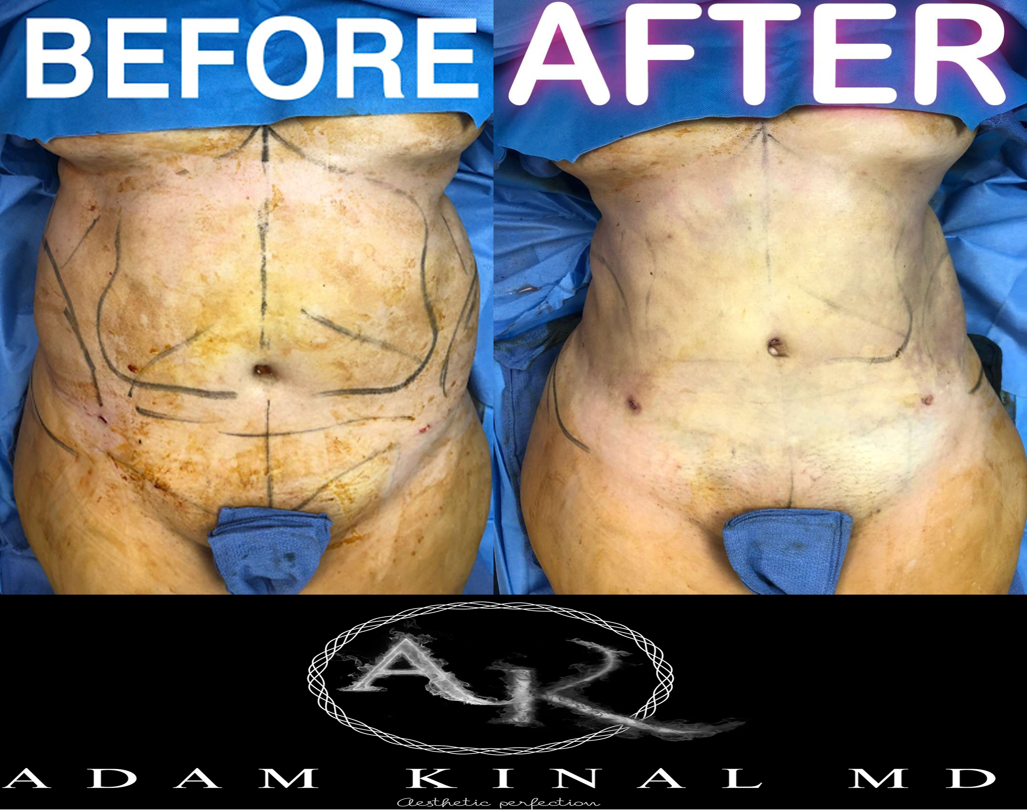 Liposuction070118