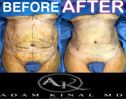 Liposuction070118