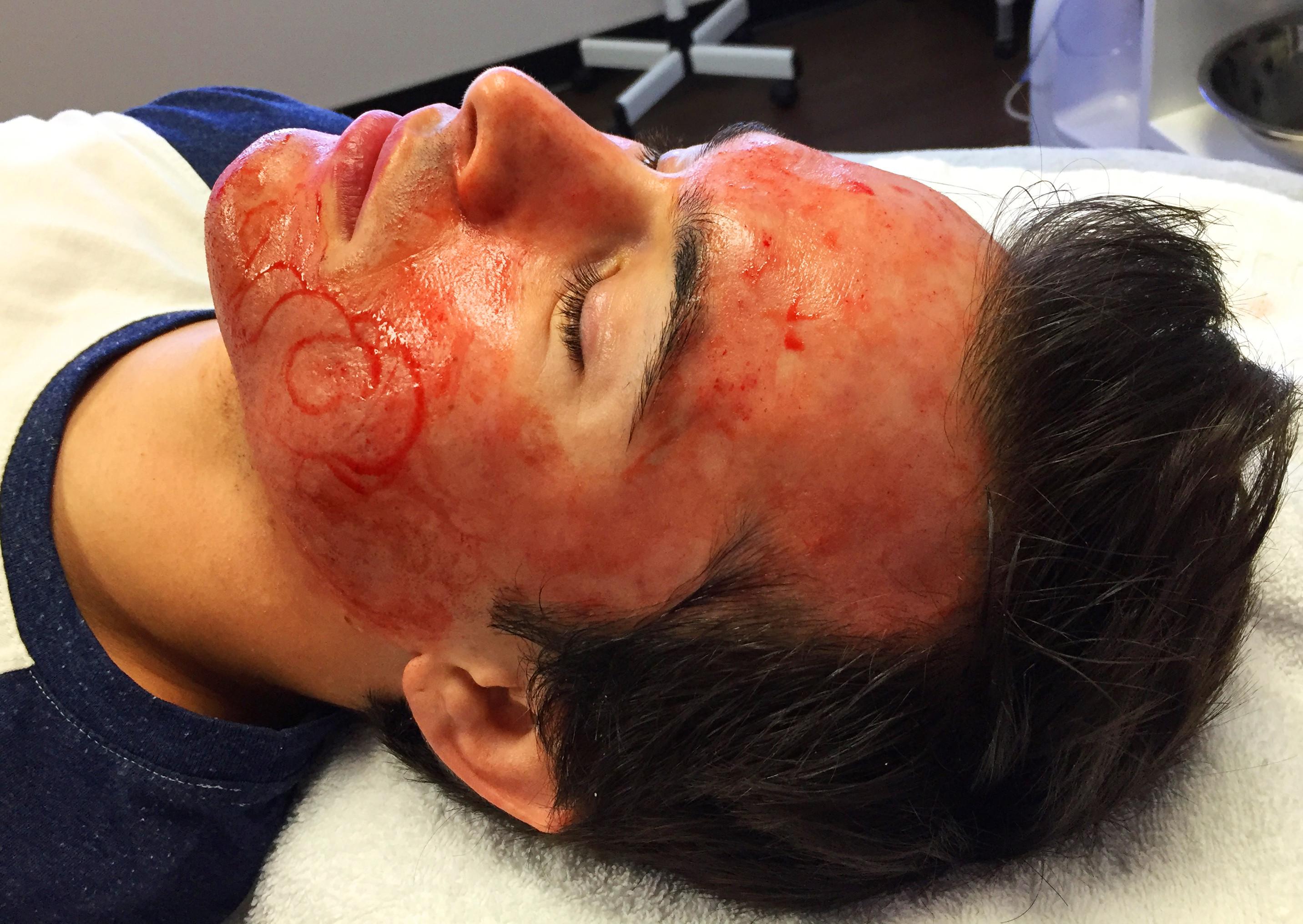 PRP/ Blood Facial