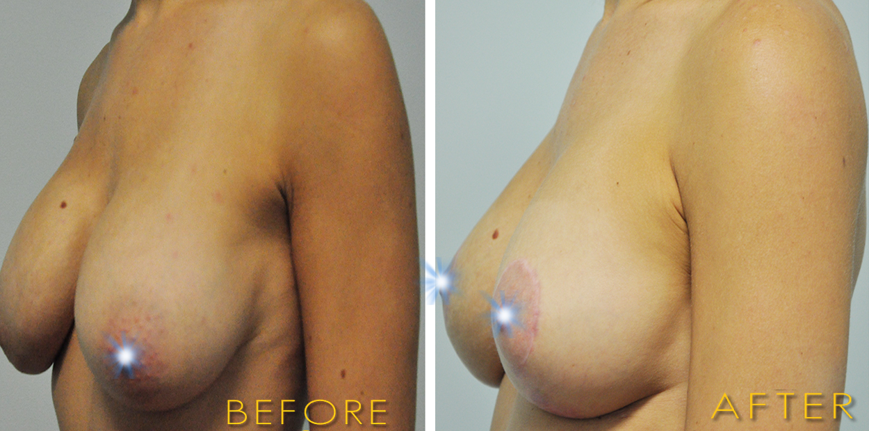 Breast lift + Implant Exchange