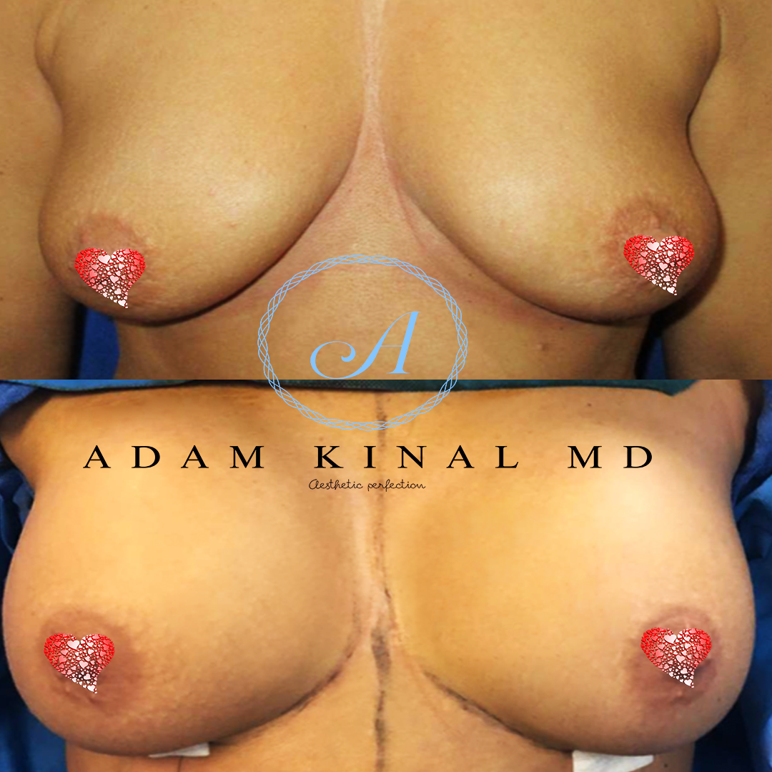BreastImplant083118