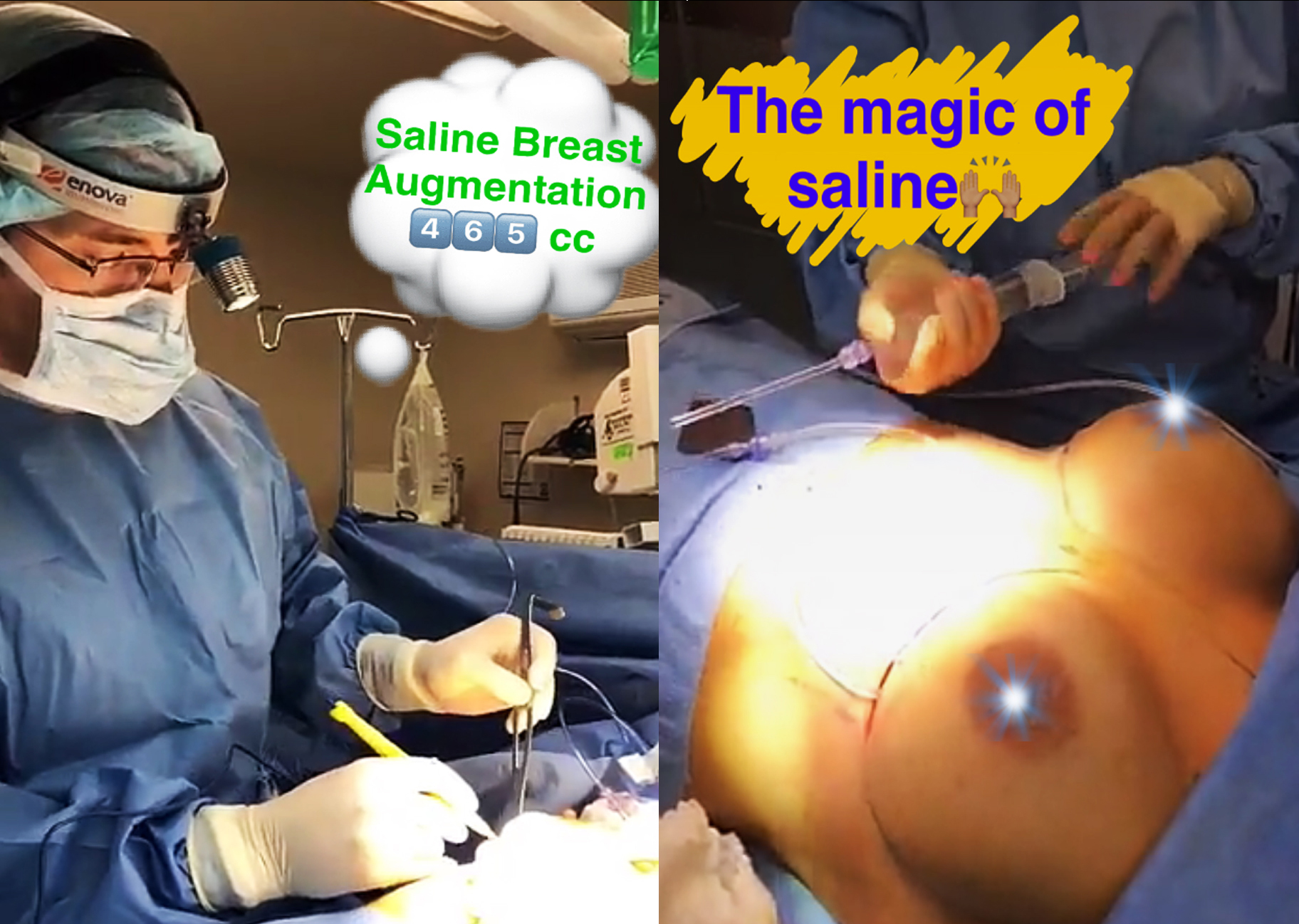 SALINE Implant Exchange