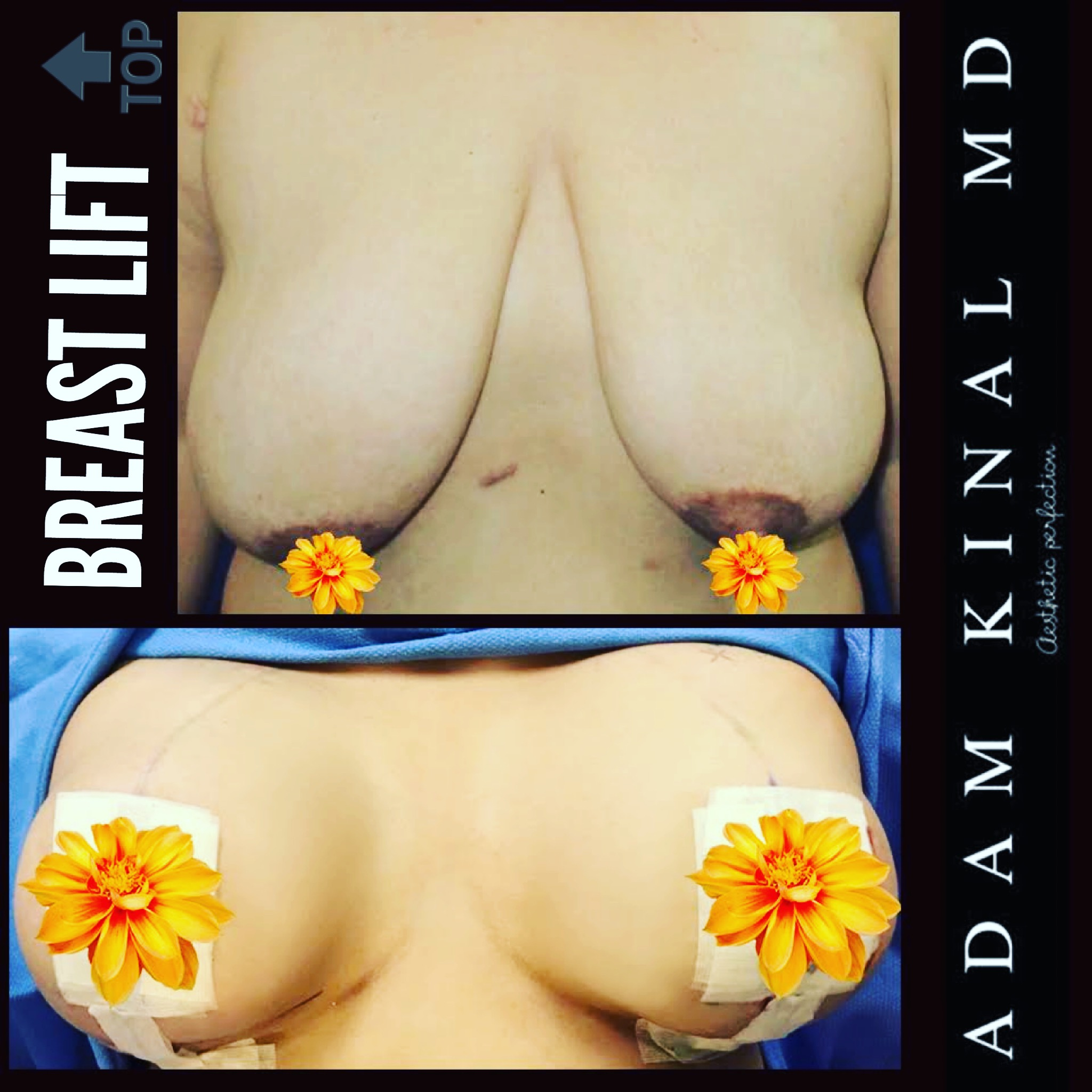 BreastLift923
