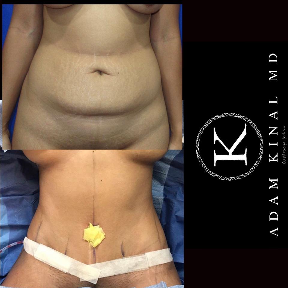 Tummy Tuck051219