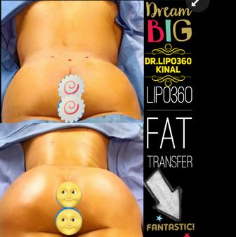 FatTransfer1.PNG