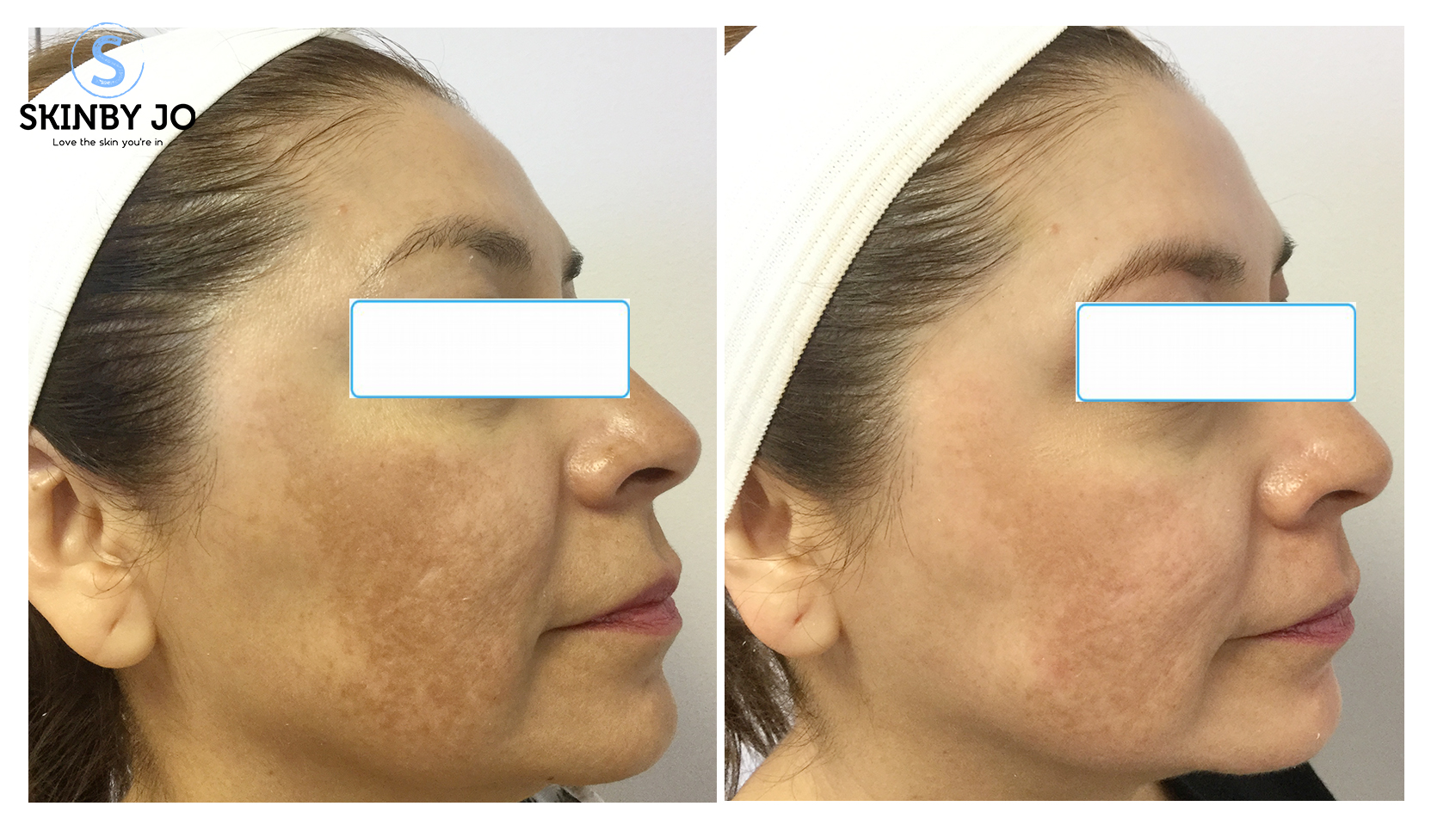 Melanage Peel