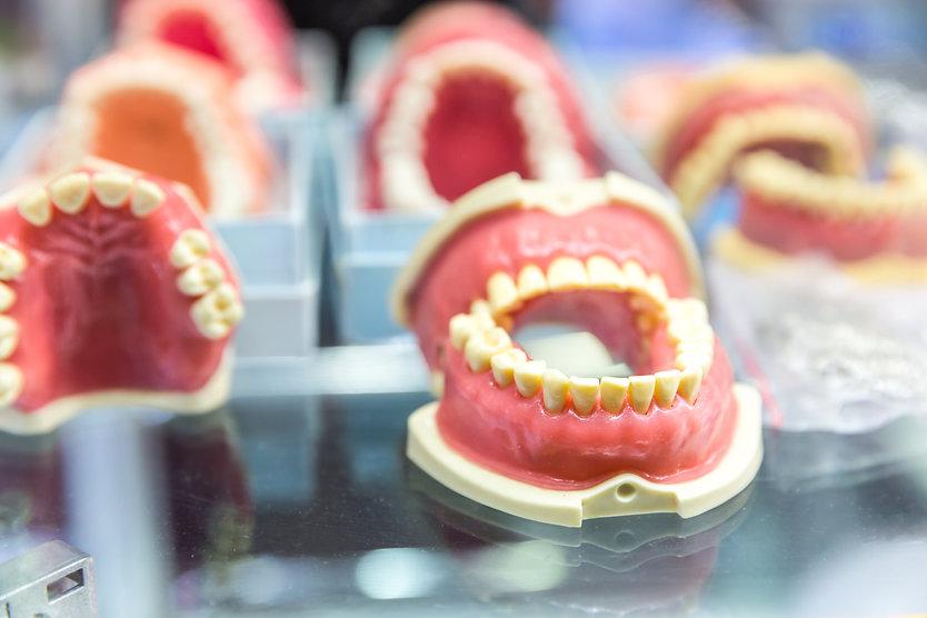 dental-denture-treatment-prosthetic-dent