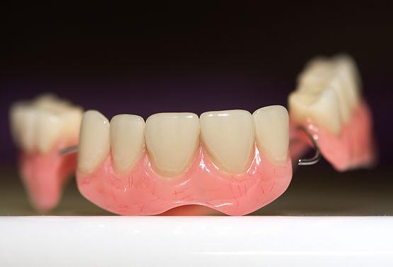 dental-prosthesis-on-dark-background-4EM