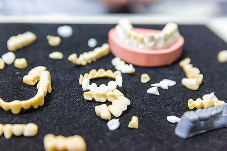 denture-treatment-prosthetic-dentistry-i