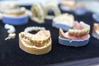 denture-prosthetic-dentistry-dental-impl