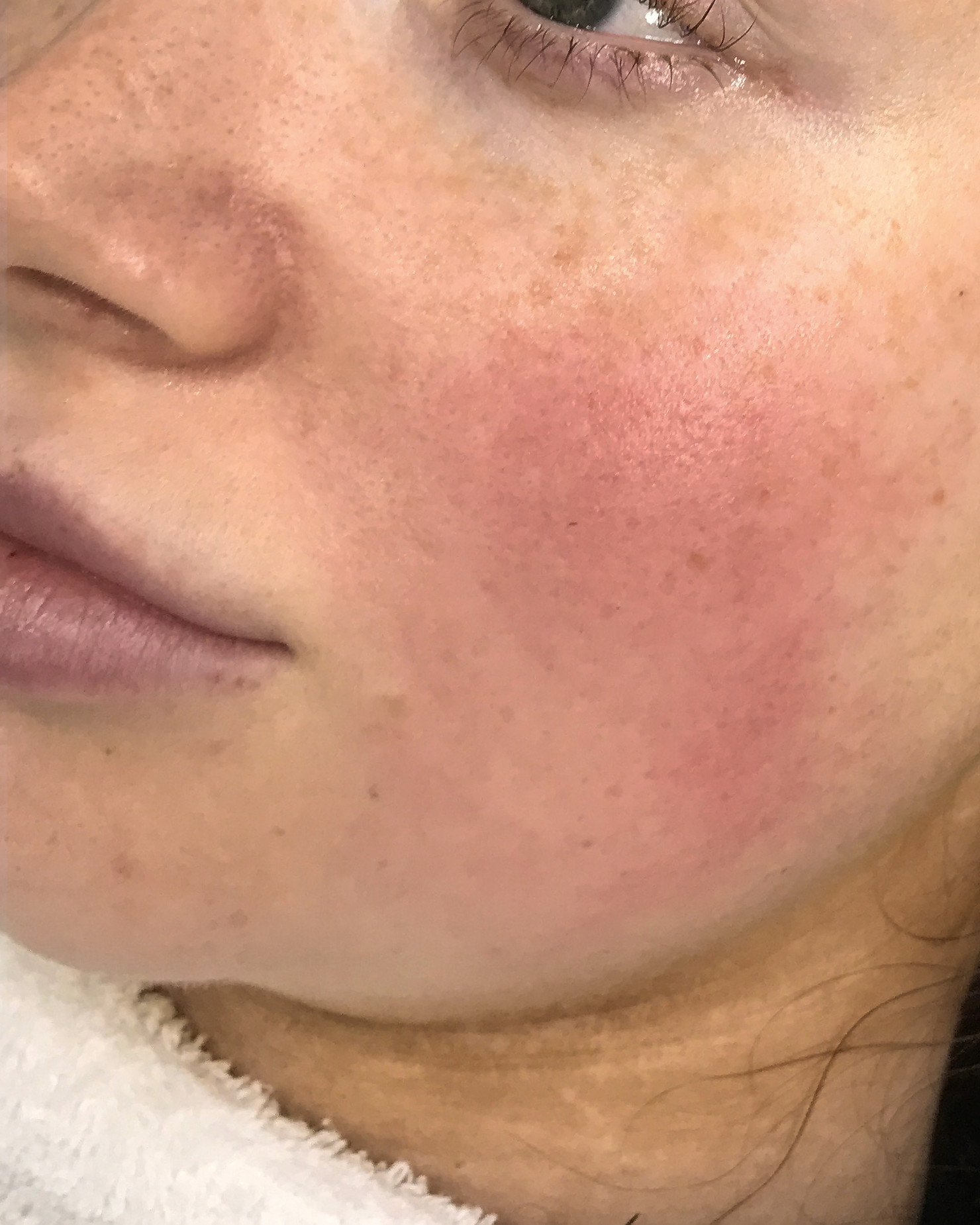 AFTER COLLAGEN INDUCTION THERAPY AND SKIN COACH