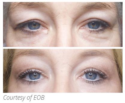 eob-eyes.png