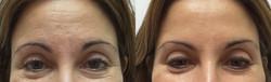 Microneedling and Botox