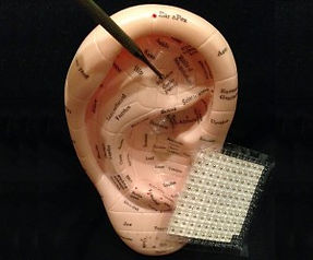 Auriculothérapie réflexologie