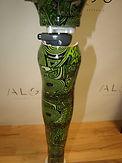 Prothèse fémorale customisée avec genou Kenevo
