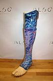 Prothèse tibiale personnalisée bleu corail