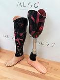 Prothèses tibiales personnalisées