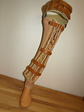 Orthoprothèse pour agénésie