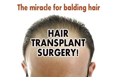 hair transplanant