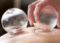 טיפול בכאבי גב - כוסות רוח