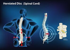 טיפול בכאב גב תחתון - סער מדיקל.jpg