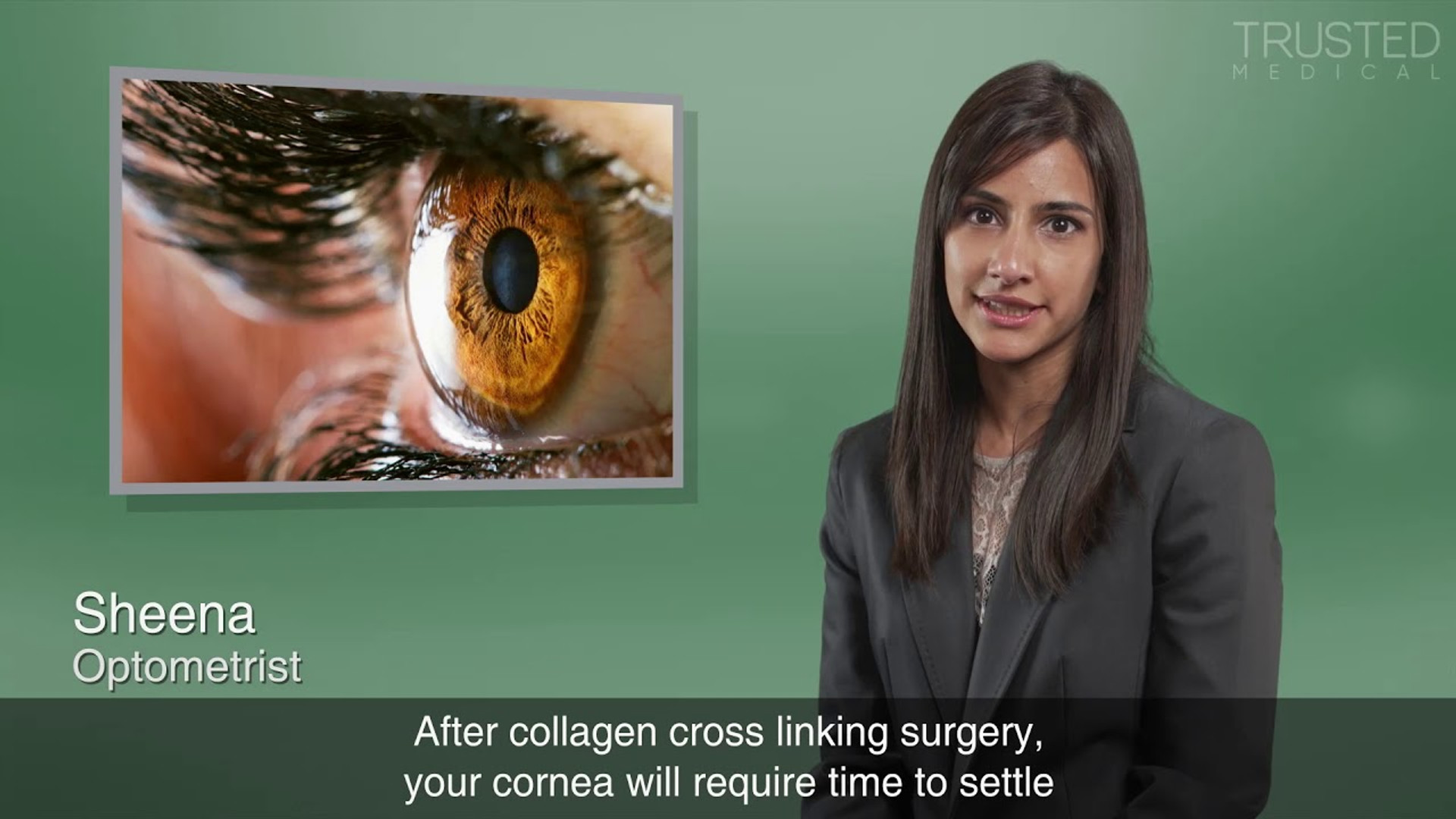 Will I be able to wear glasses or contact lenses after Collagen Cross Linking treatment?