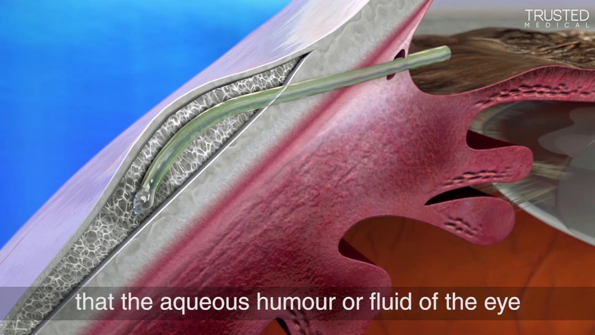 XEN Gel Implant Explanation