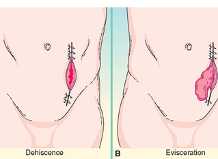 What is the difference between wound dehiscence and wound evisceration?