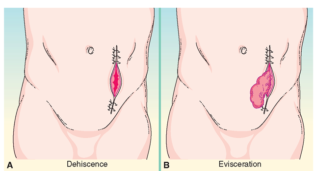 Wound dehiscence, wound evisceration