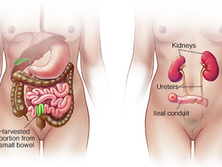 Cystectomy and Urinary Diversion Nursing Care