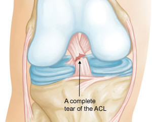 Anterior Cruciate Ligament  (ACL) is one of the most common knee injury.