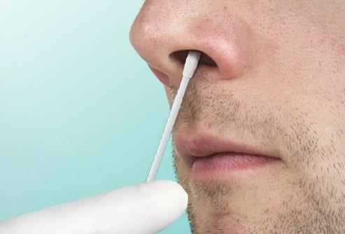 MRSA collection (nasal)