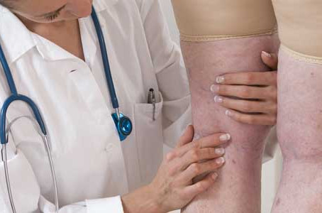 Nationally known dermatologist in Chicago provides sclerotherapy to treat leg veins