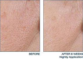 daily-treatment-cream-face-1-thumb.jpg