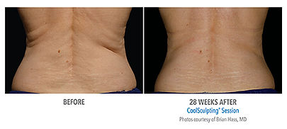 coolsculpting-ba.jpg