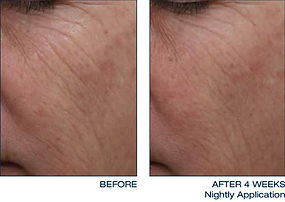daily-treatment-cream-face-2-thumb.jpg