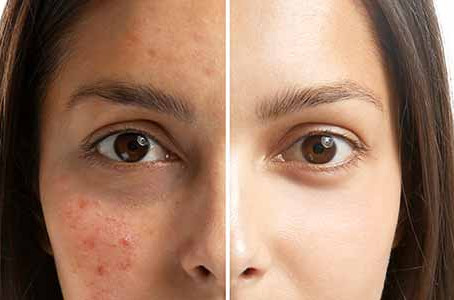 Acne scar removal may be done with chemical peels from your dermatologist in Chicago