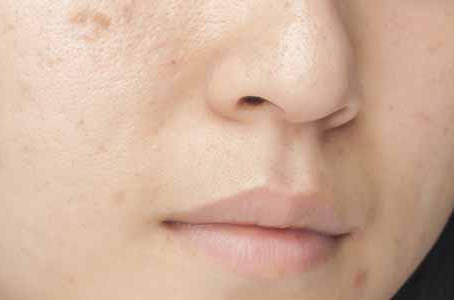 Chemical peel treatment for the reduction of dark spots for our Chicago patients