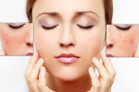 Well-known Chicago dermatologist uses Radiesse to restore a youthful appearance
