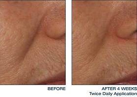 intensive-treatment-lines-2-thumb.jpg