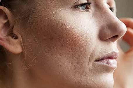 Options for acne scar treatment in Chicago