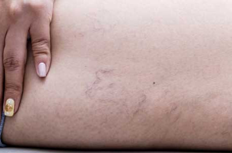 Respected dermatologist in Chicago provides treatment for spider veins