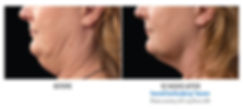 coolsculpting-ba-7.jpg