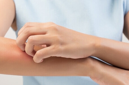 Get results with customized psoriasis treatment in Chicago