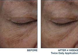 daily-treatment-cream-eye-2-thumb.jpg
