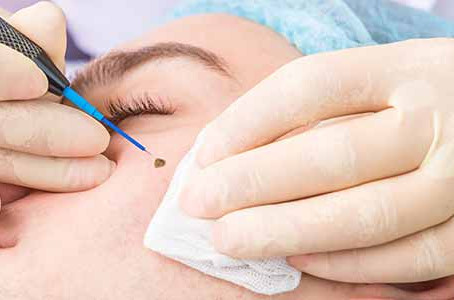 Will basal cell carcinoma require mole removal surgery near me in Chicago?