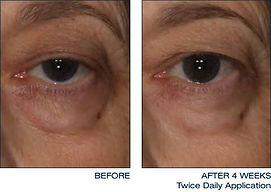 daily-treatment-cream-eye-1-thumb.jpg