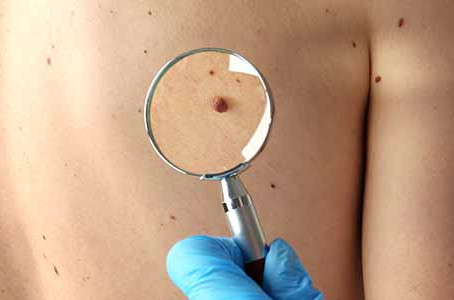 Routine skin check can help Chicago area residents in identifying cancerous moles