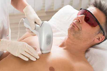 What might laser hair reduction near me in Chicago require?